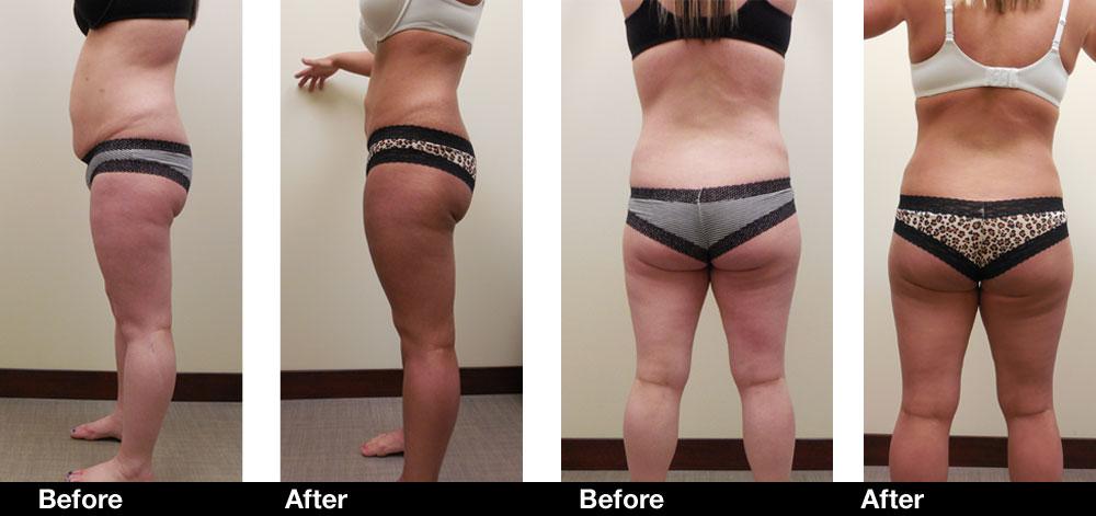 Liposuction-results2.jpg