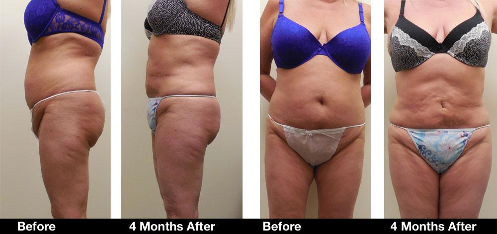 Liposuction-results4.jpg