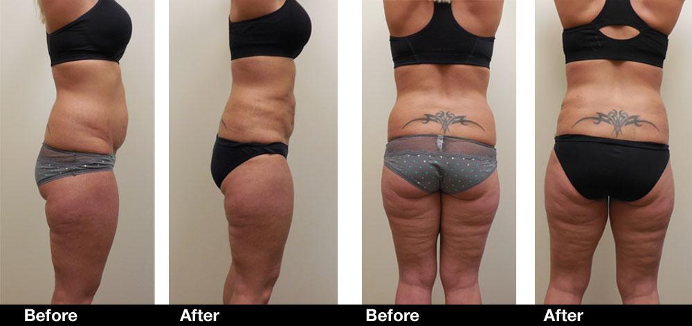 Liposuction-results1.jpg
