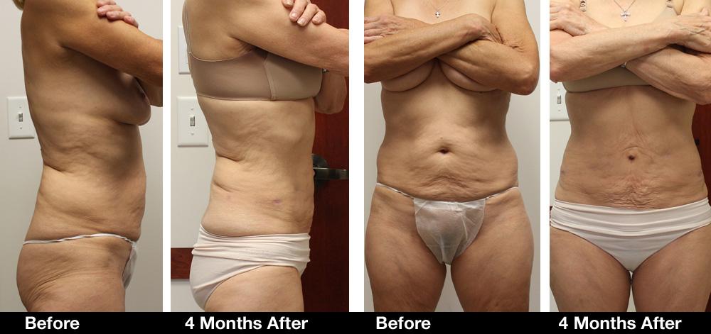 Liposuction-results5.jpg
