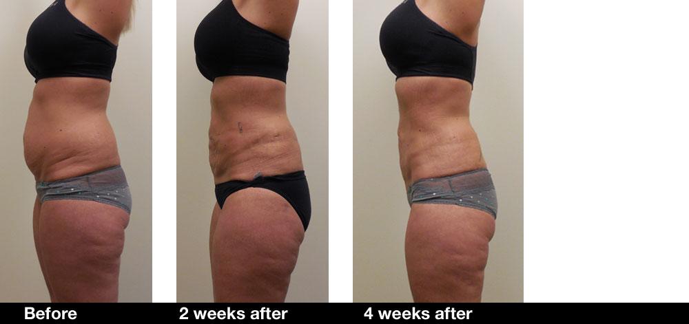 Liposuction-results3.jpg